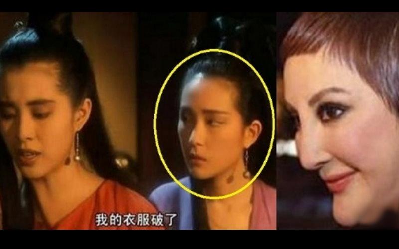 她曾是「王祖賢」身旁的「小青」,卻把自己整成這副模樣!但她堅稱她沒有整容,而是「那個病」留下的恐怖後遺症…  -