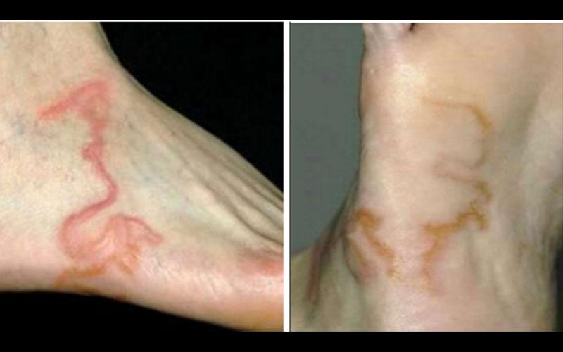 男子腳上出現不明紅痕,以為是靜脈屈張於是到醫院檢查,沒想到這驚人的「真相」讓他驚嚇到想吐!!  -