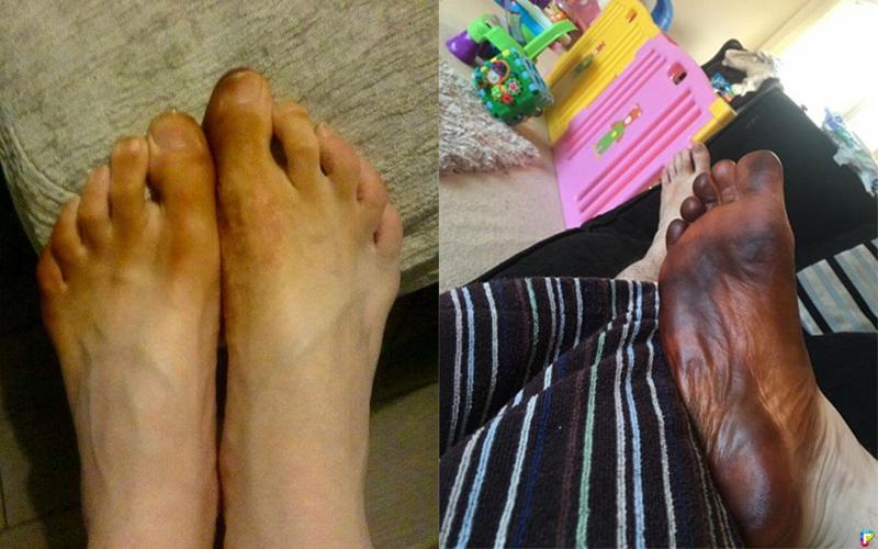 男子一覺醒來發現「腳變成黑色」!以為患上怪病,叫救護車後才發現罪魁禍首是老婆!