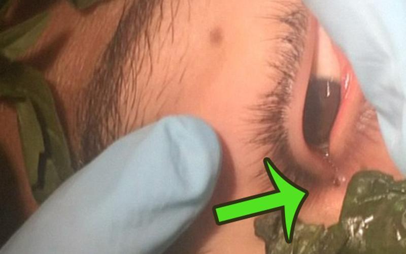 蠕蟲在男子眼睛裡住了一個月!醫生最後拿出「羅勒葉」成功引誘,一取出蟲子眾人都尖叫了