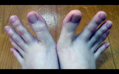 她發現自己穿露趾的鞋子時都會一直被看「PO出雙腳照」後網友驚呆:乾這食指太可怕!