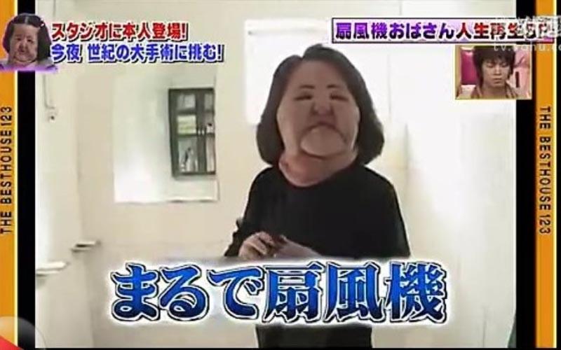 還記得「電風扇阿姨」嗎?迷戀整形在「臉上注射食用油」醫治消腫後仍駭人……