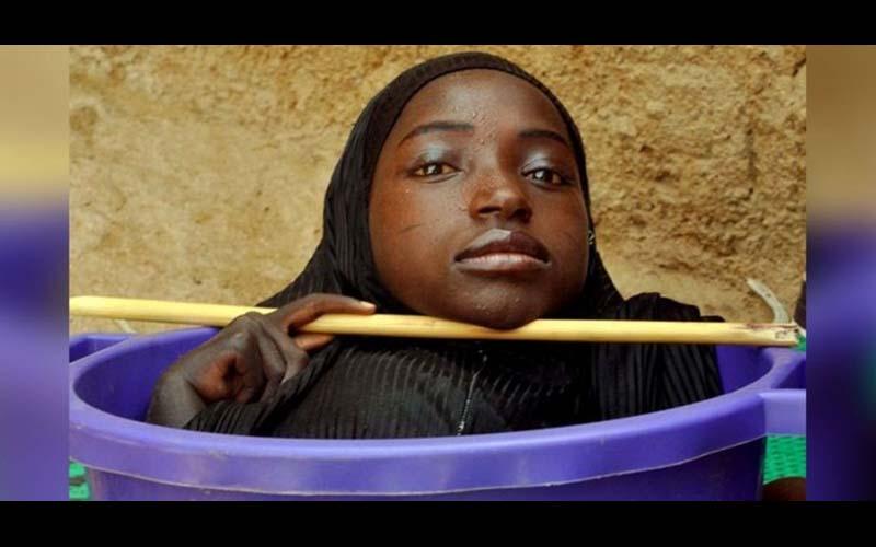 19歲青春年華的少女,卻只能終身住在臉盆裡,她的故事令人心疼!
